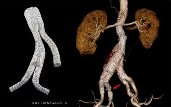 図5:内腸骨動脈を温存(矢印)したEVAR
