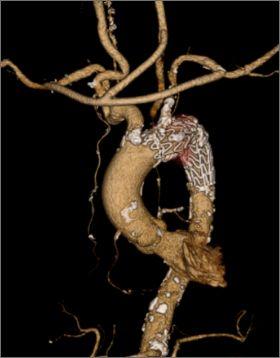 図6:頸部分枝へのバイパスを同時施行したTEVAR