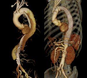 図7:広範囲大動脈瘤に対する人工血管置換術とTEVARのハイブリッド手術