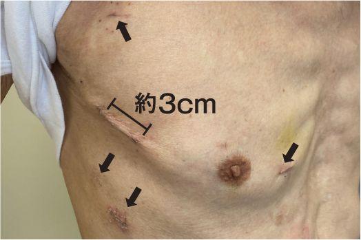 ロボット手術から2週間後の創部:5箇所